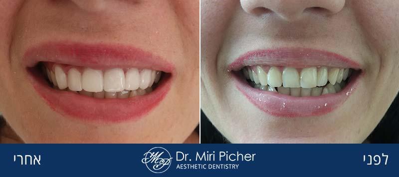 ציפויי חרסינה לשיניים 87